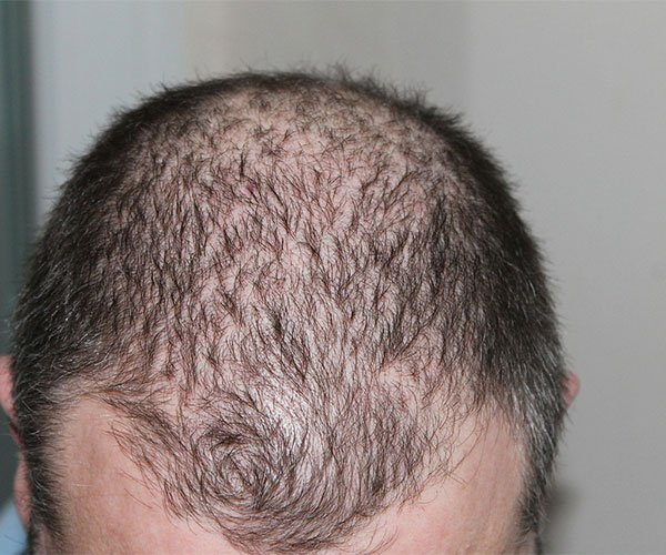 Scalp Micro Pigmentation Is the Best Solution to Hair Loss
